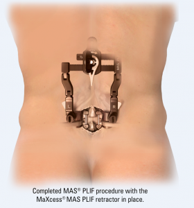 Completed MAS PLIF procedure with the MaXcess MAS PLIF retractor in place