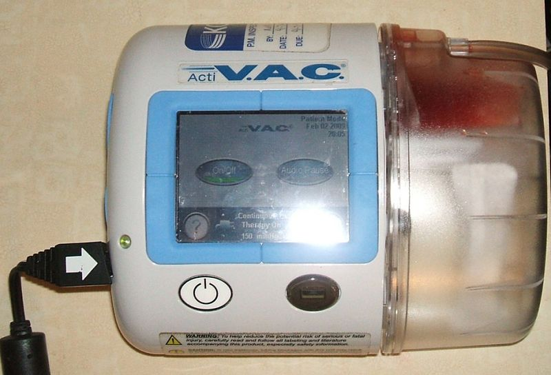 V.A.C. Therapy system