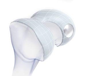Episurf's implant the Episealer